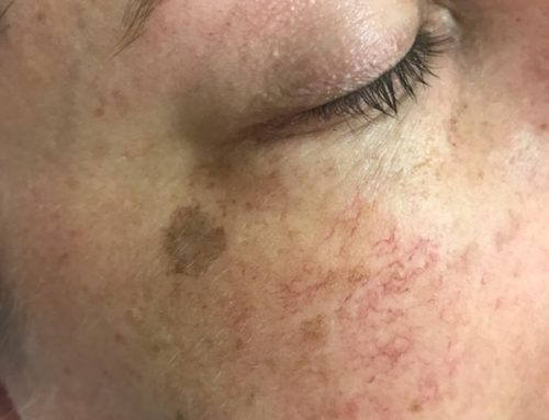 What can IPL pigmentation therapy do for sun damaged skin?