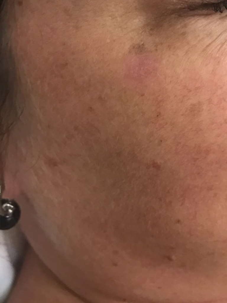 After just one IPL treatment